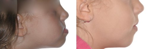 Défict maxilar 7/0 exeso mandibular